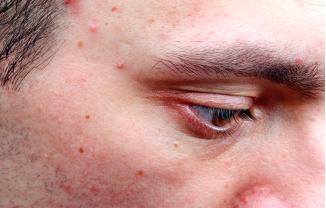 Buena noticia: tener acné puede retrasar el envejecimiento de la piel