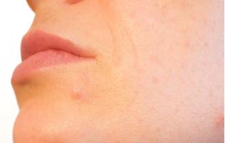 ¿Es el sol bueno para el acné?